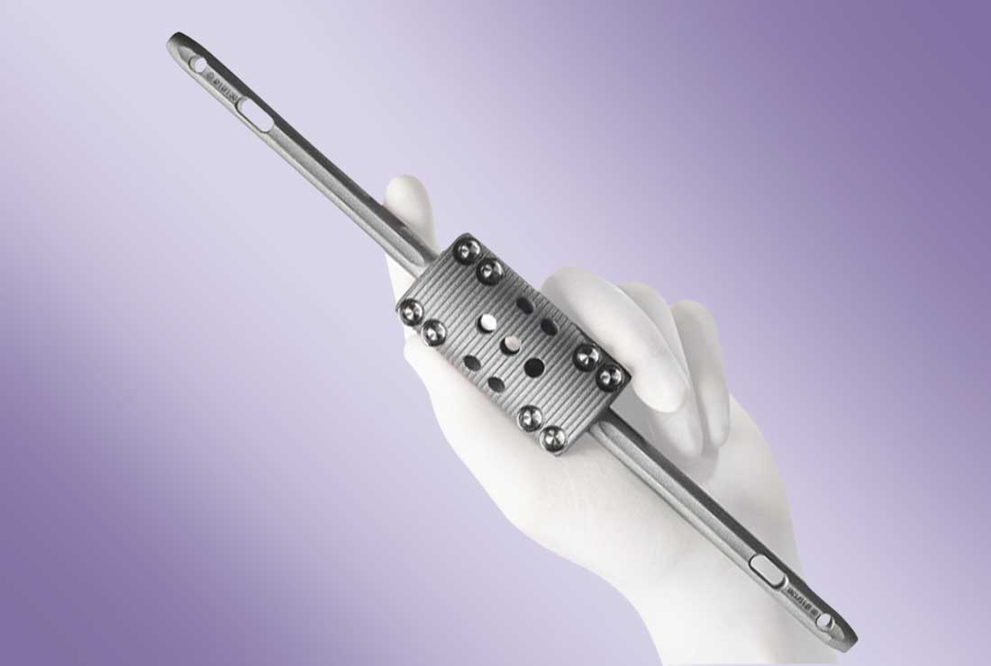 OsteoBridge™ IDSF – Intramedullary Diaphyseal Segmental Defect Fixation System