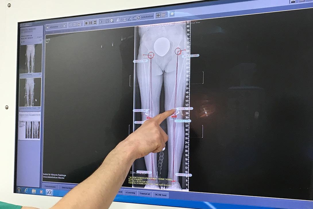 Hospitation bei Prof. Dr. med. R. Rödl (Universitätsklinikum Münster)