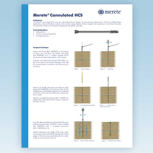 Merete® Cannulated HCS Screw