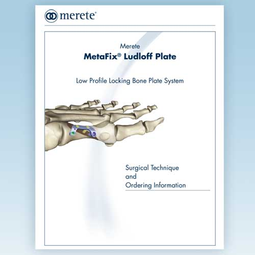 Merete-MetaFix™ Ludloff