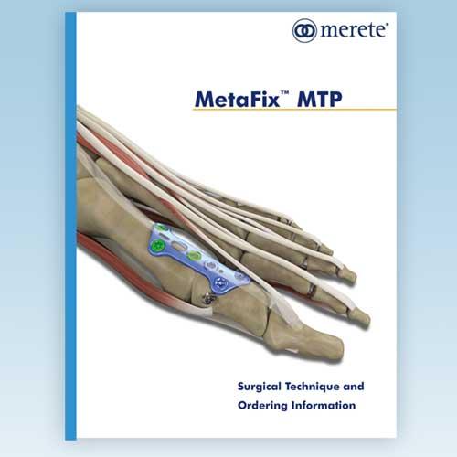 Merete MetaFix™ MTP