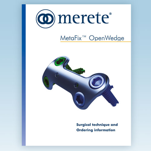 MetaFix™ OpenWedge